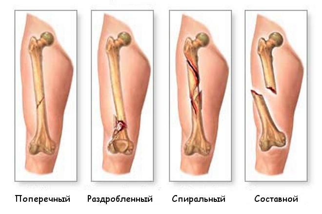 Виды переломов костей