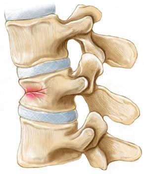 Компрессионный перелом позвоночника - причины, симптомы, диагностика, лечение