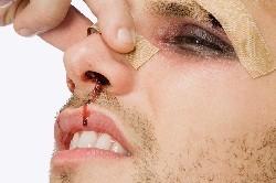 Затрудненное дыхание, кровотечение и болевые ощущения - симптомы перелома носа.
