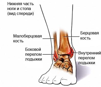 Перелом лодыжки: виды, симптомы, лечение