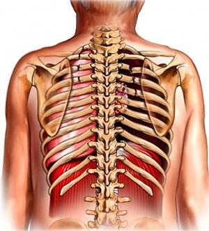Перелом ребра - самая распространенная травма грудной клетки