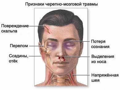 Список признаков ушиба головного мозга