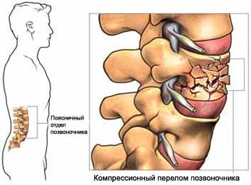 Компрессионный перелом позвоночника в поясничном <i>история болезни по компрессионному перелому позвоночника</i> отделе