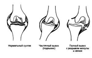 Виды вывихов суставов