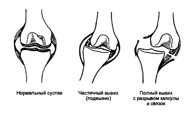 Первая доврачебная помощь при вывихе суставов