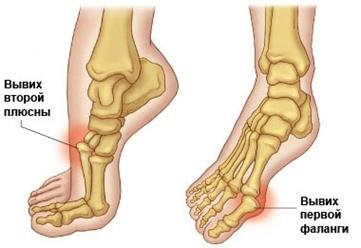 Что делать при вывихе ноги? Признаки, симптомы, первая помощь, лечение