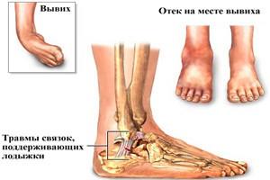 Симптомы и признаки вывиха ноги