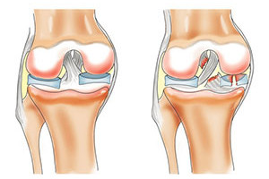 Растяжение связок коленного сустава - методы лечения
