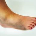 Ушиб ноги – основные признаки
