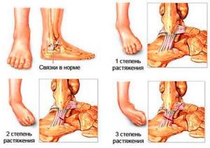 Степени вывиха ноги