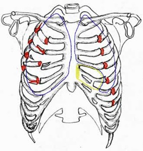 При многочисленных повреждениях ребер, обломки могут нанести ущерб внутренним органам
