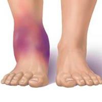 Ушиб ноги лечение - в домашних условиях