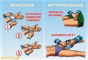 Помощь при кровотечении