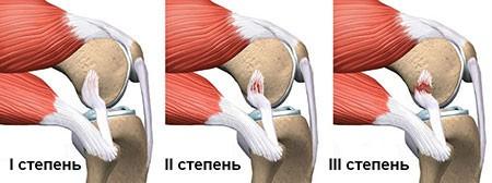 Степени растяжения коленного сустава