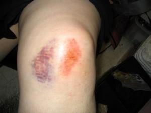 Лечение ушиба колена в домашних условиях