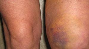 Гематомы, опухоли и болевые ощущения - признаки травмы колена.