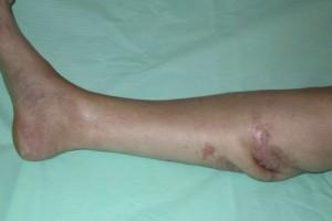 Остеомиелит кости - диагностика, признаки