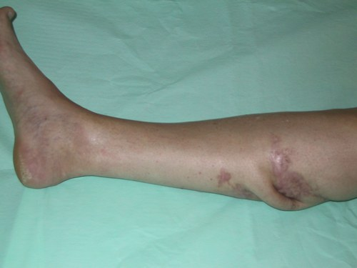 Признаки остеомиелита костей - причины, формы, диагностика