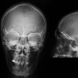 Деформирование кости лобной пазухи