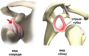 Патология плечевого сустава