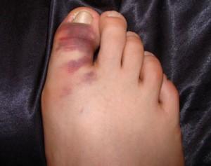 Травмирование фаланги пальцев ступни