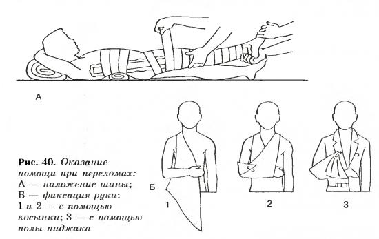 Фиксация поврежденных частей тела
