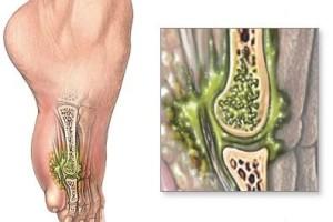 Остеомиелит: насколько опасна болезнь, и какие осложнения могут возникать?