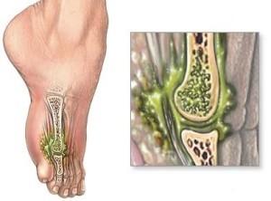 Поражение костной ткани вредоносными микроорганизмами