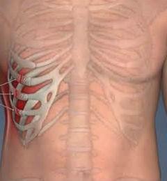 Частичное нарушение целостности ребра