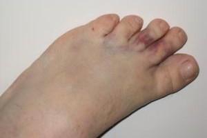 Травмирование стопы