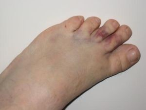 Ушиб пальцев стопы