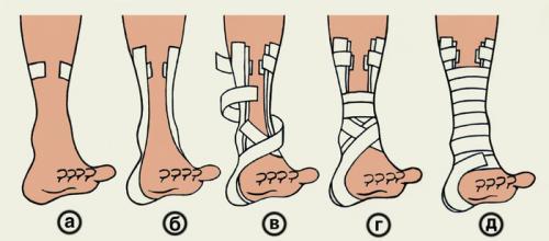 Инструкция по накладыванию повязки при вывихе голеностопного сустава