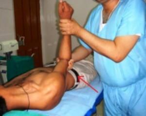 Вывих плечевого сустава - что делать?