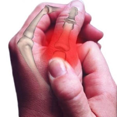 Клиническая картина при повреждении кости