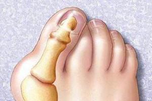 – Травмирование пальцев нижней конечности