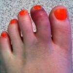 Переломы пальцев стоп