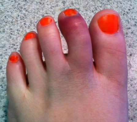 Клинические проявления патологии костной ткани пальцев на ноге