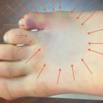 Перелом стопы: причины, виды, симптомы, лечение