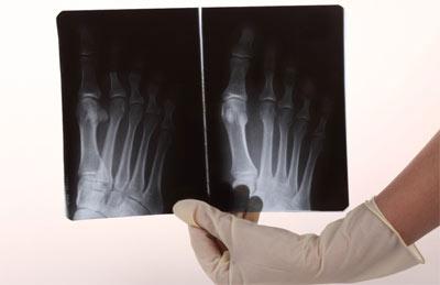 Рентген травмированной конечности