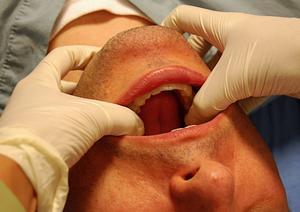 Врачебный осмотр поврежденной челюсти