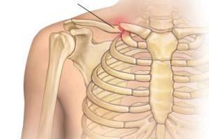 Симптомы и помощь при переломах ключицы