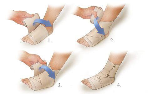 Лечение растяжения связок стопы