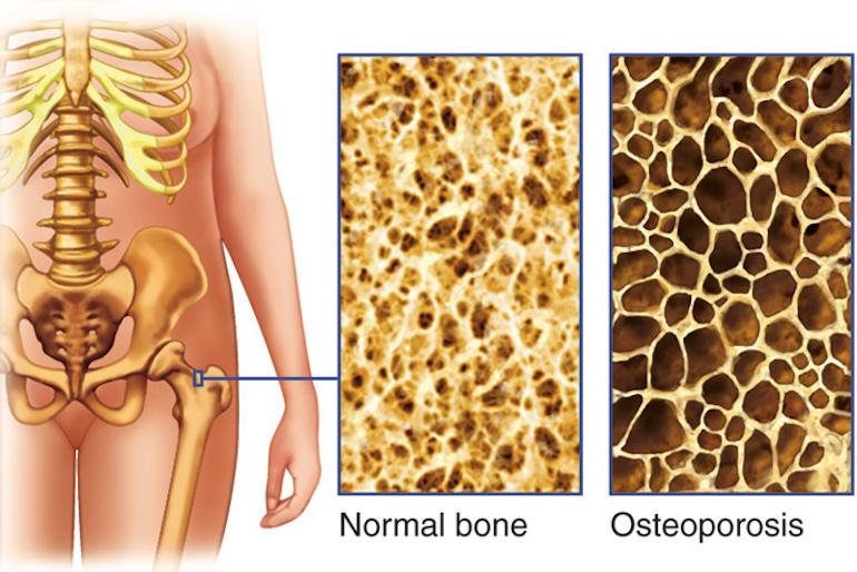 Остеопороз или почему кости становятся хрупкими